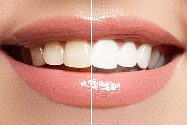 Tanden bleken witte tanden witte lach